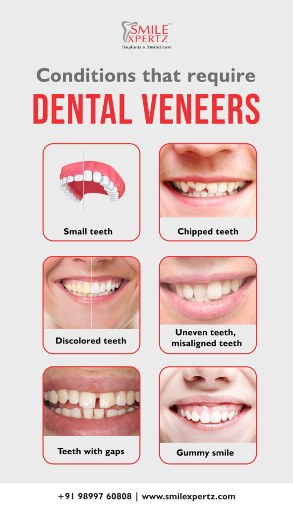 Condition that requires dental veneers