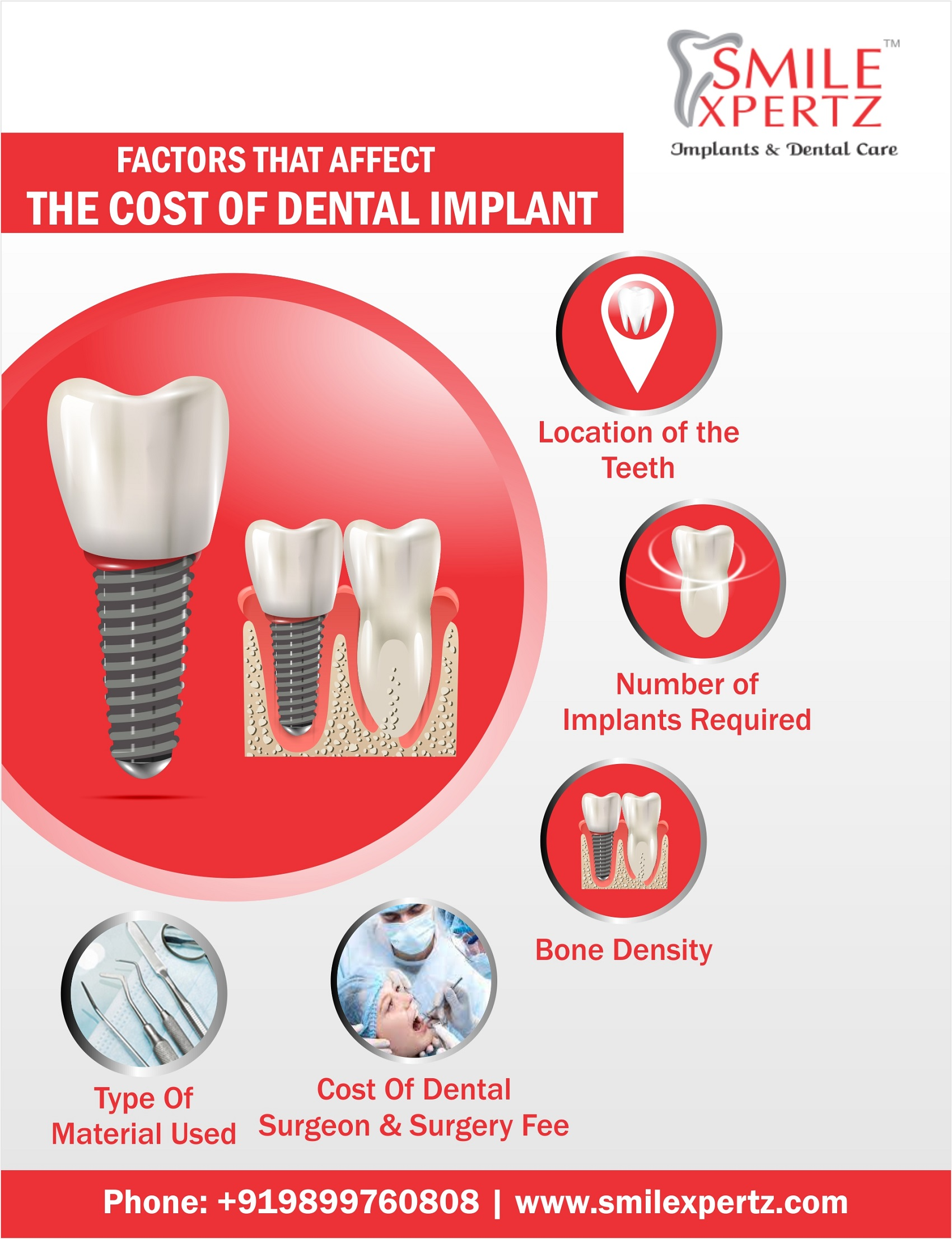 factors affecting the cost of dental implants